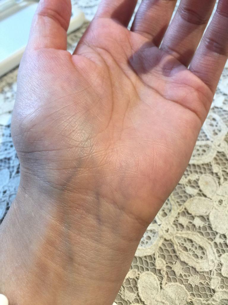 手掌青筋多 大鱼际青筋偏多 感觉还发青