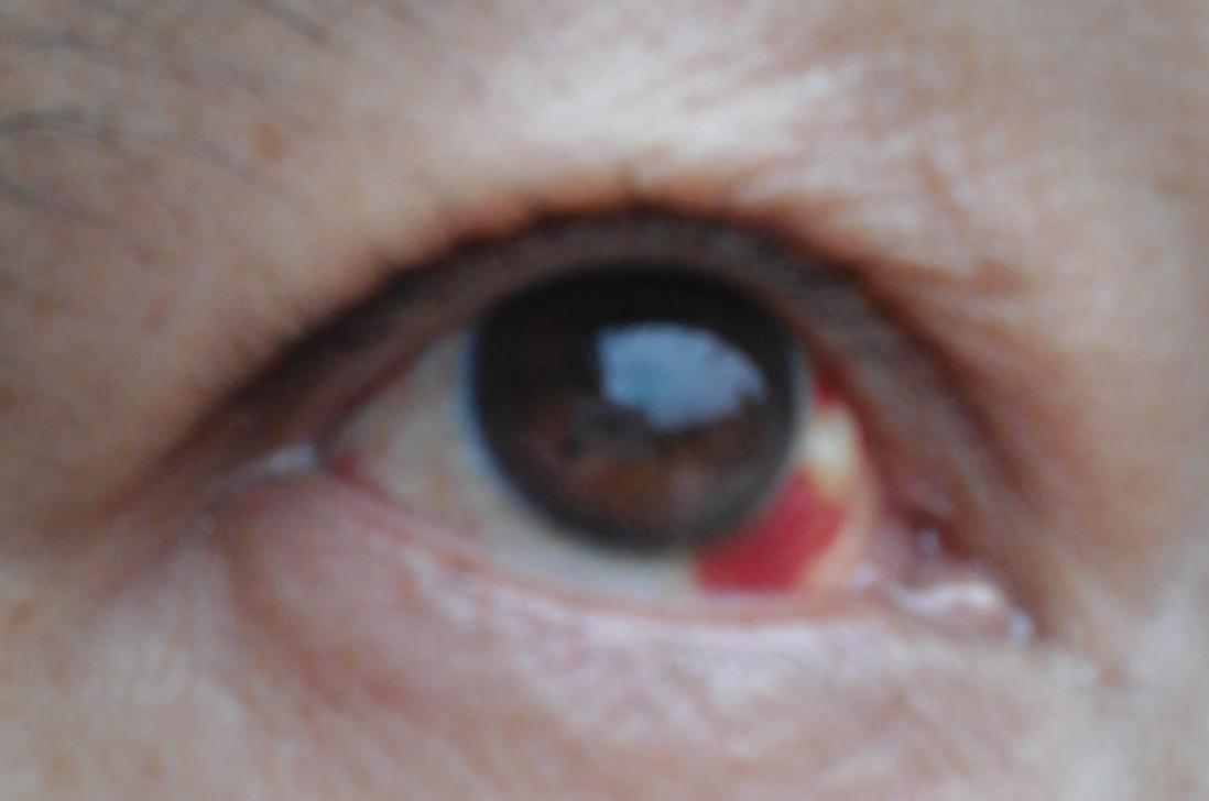 眼睛充血但是不痛不痒_眼睛充血有白色肿块