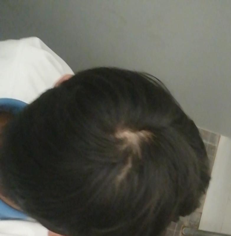 18岁男性 头顶漩涡处头发是不是有点稀少