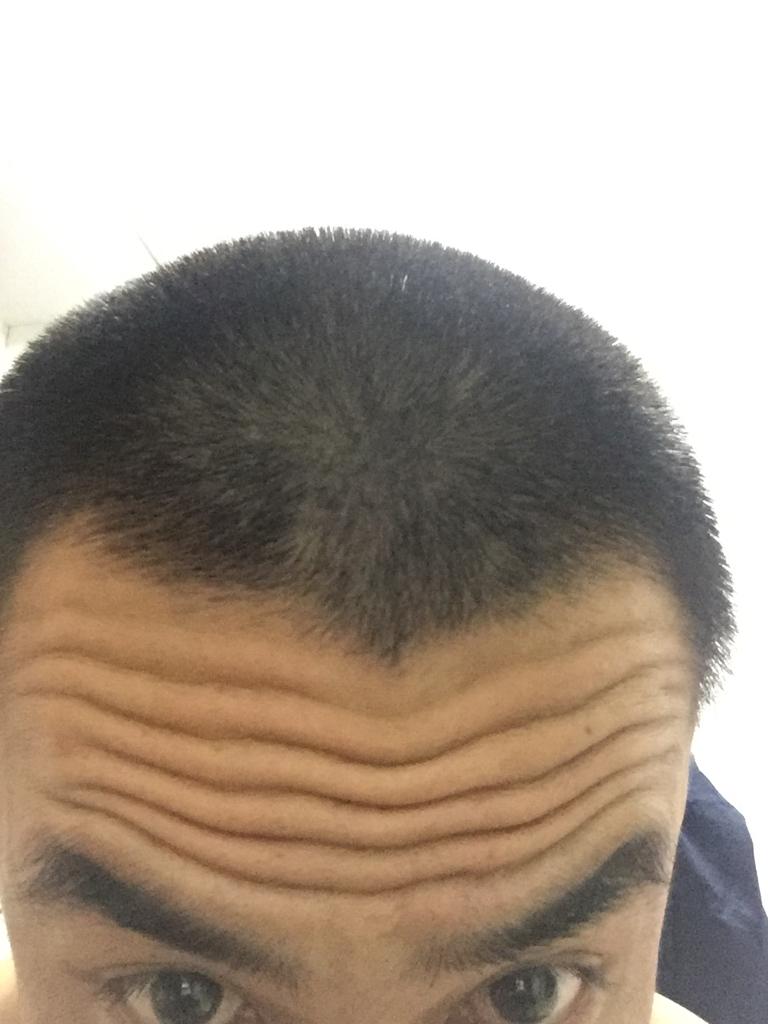 头上有三条抬头纹的面相好吗还是v字的.男生