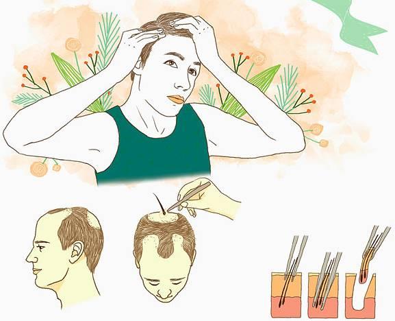 植发后如何照顾