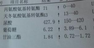 什么是中度脂肪肝_中度脂肪肝严重吗?下面附检查单