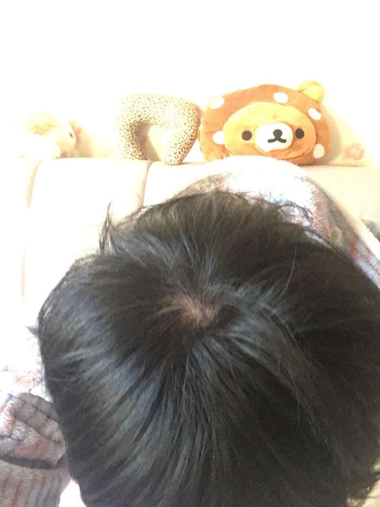 这个头发漩涡这里的头发算少么?