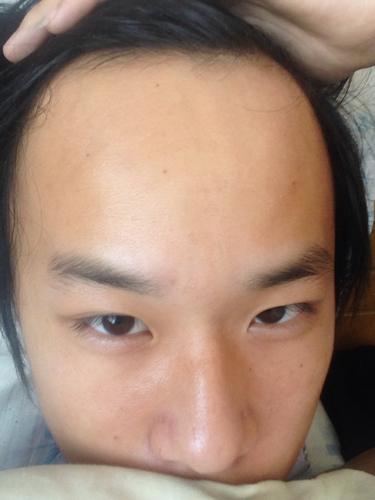 r额头没有头发怎么办.什么发型好看.头发软.图片