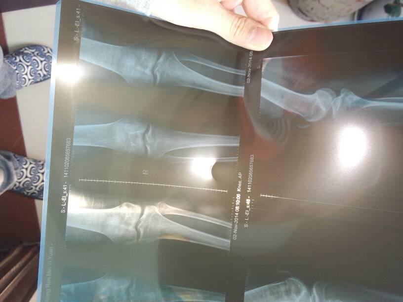 求大神看看我的骨骺线闭合了没?膝盖部位的.
