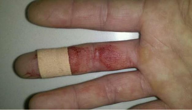 手被刀割流血的囹�a_手流血的图片,求真实