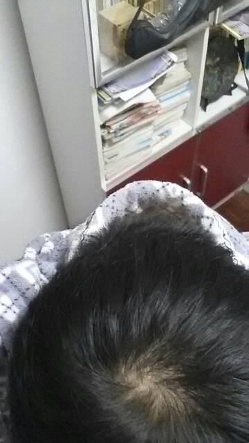 头顶旋头发有点少 这样正常吗 算脱发吗图片