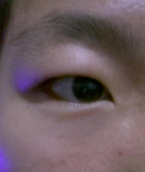 我的视频是属于肿眼睛的不弄双眼皮有双眼皮贴双吉特巴教学眼泡图片