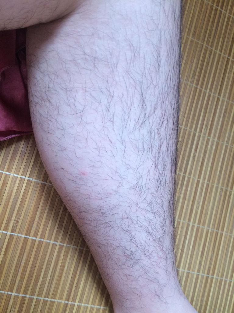 高三男生腿毛这么多正常吗?都不好意思穿短裤了