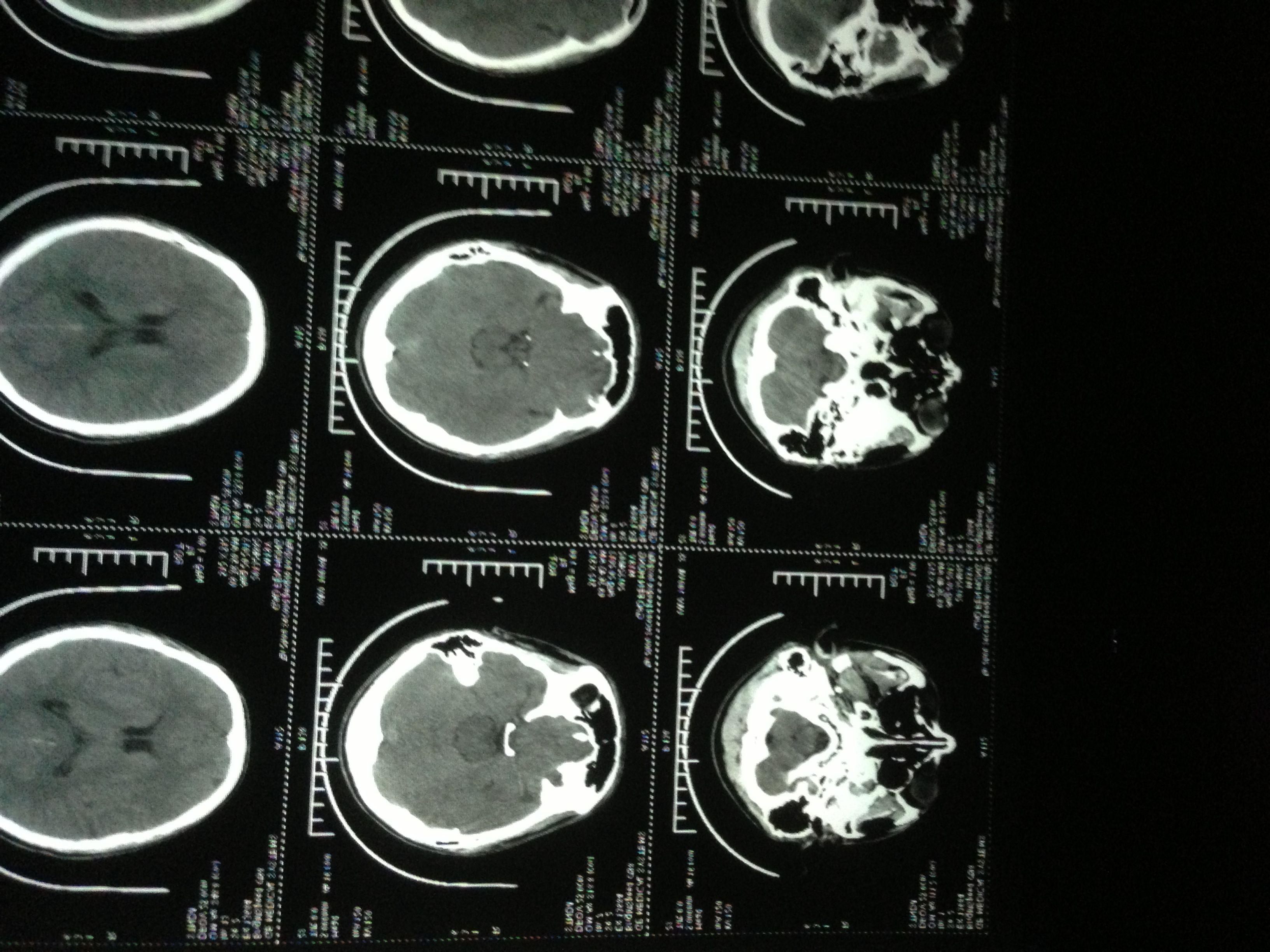 谁能帮我看看脑部ct图,急急急图片