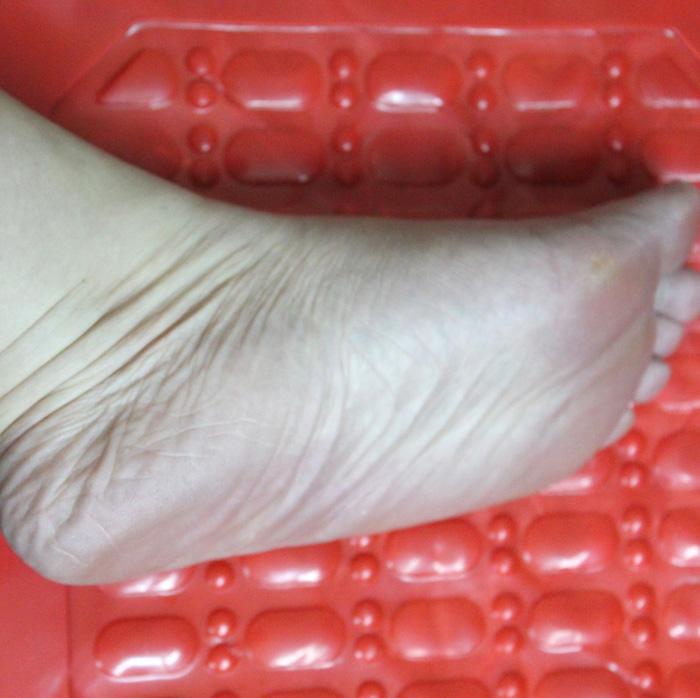 史上最丑的脚该穿什么样的鞋子才不那么难看啊?