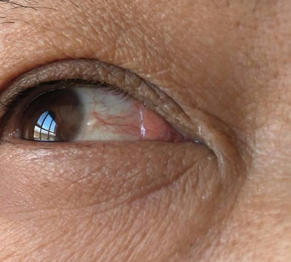 眼球上长了个白色疙瘩_白眼球上有个芝麻大小的白疙瘩,如图.这是什么病?需要