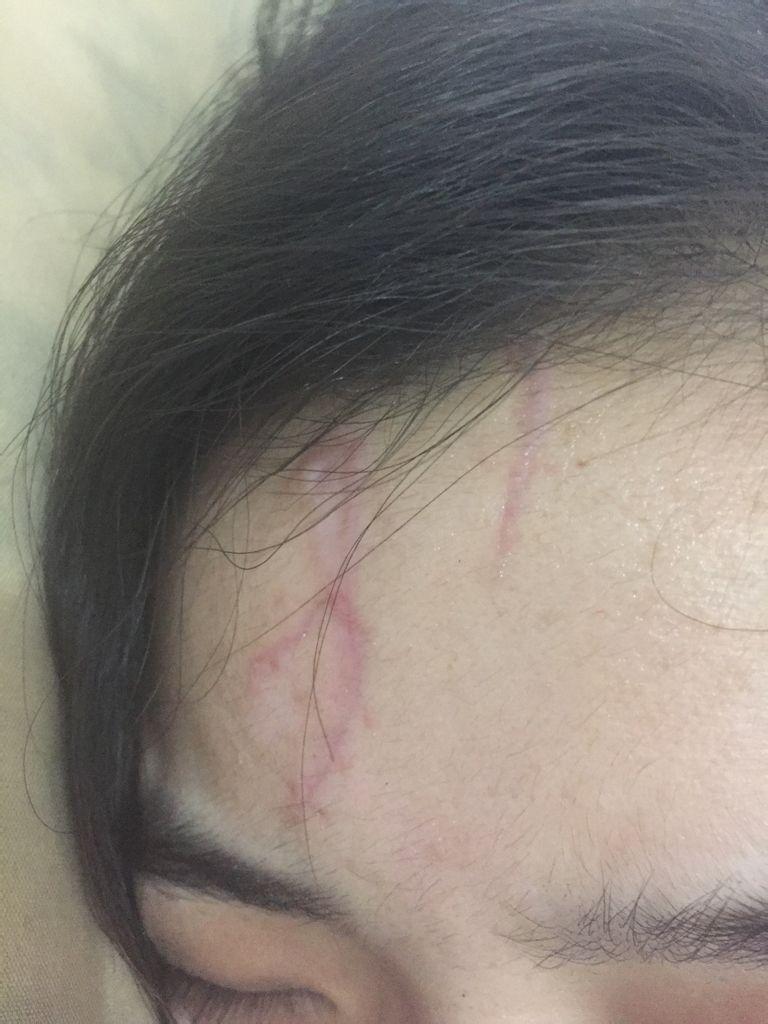 伤疤化妆手绘图