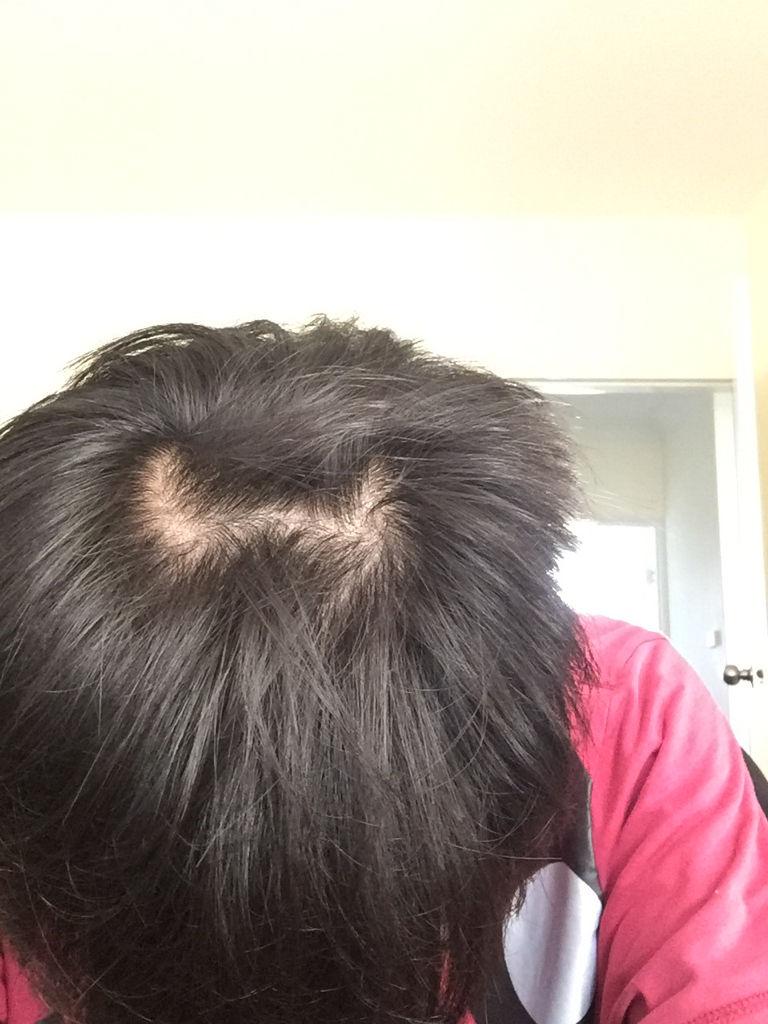 觉得自己头顶头发好少,会秃顶吗?头上长了两个对称的旋.好担心会秃头.图片