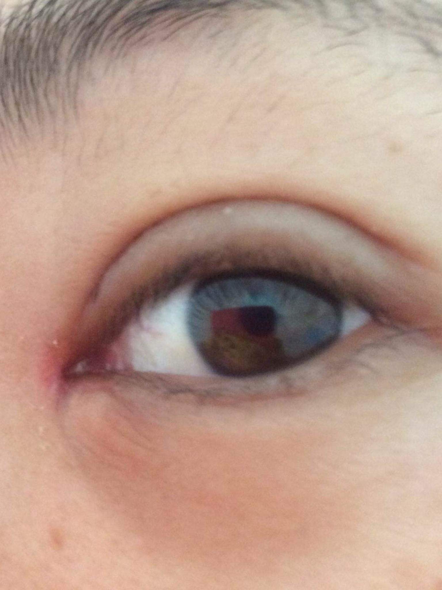 开眼角拆线第一天哭了吗