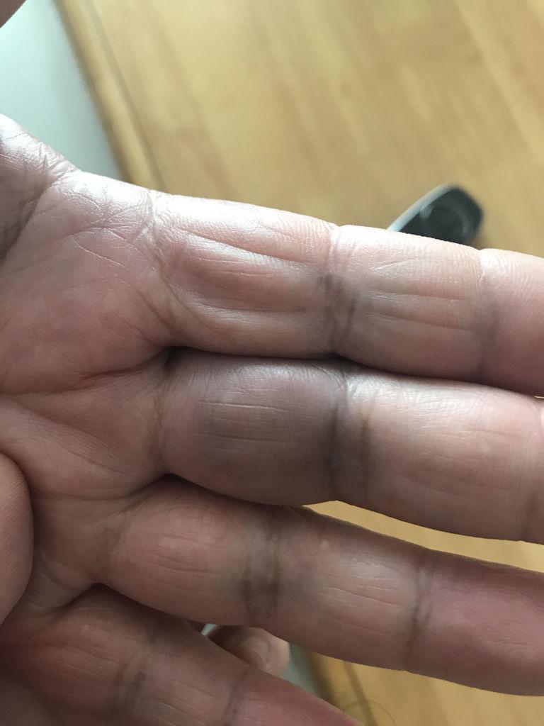 老人左手中指无名指靠近手掌的那一节手指肿胀发青.一