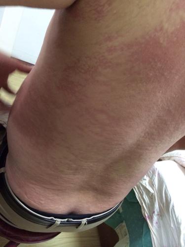 喝酒后脸红第二天脖子就皮肤过敏怎么办?图片