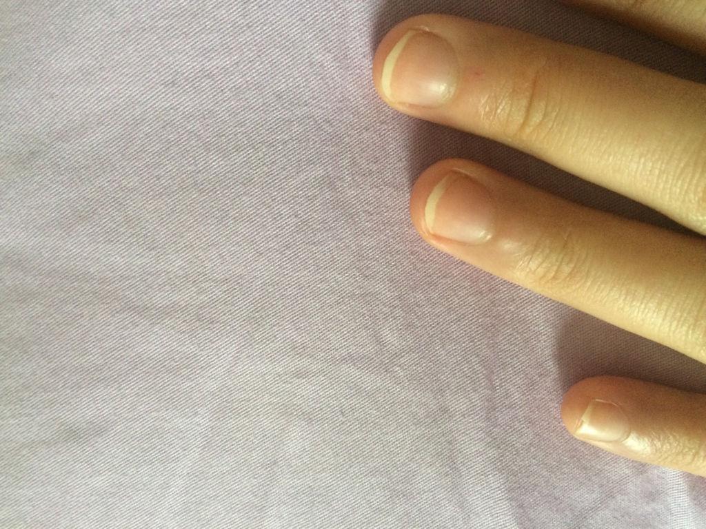 我的手指甲有甲床厚怎样能治好