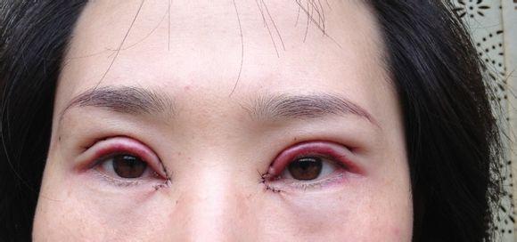 开眼角又痒又红了