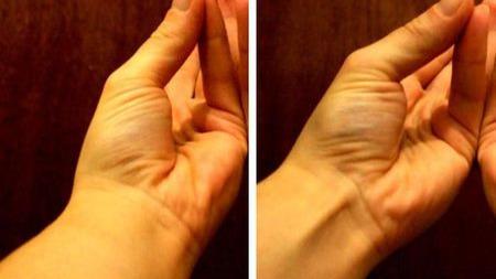 人体最常见的变异:25%的人手臂里都少了一块肌肉的头图