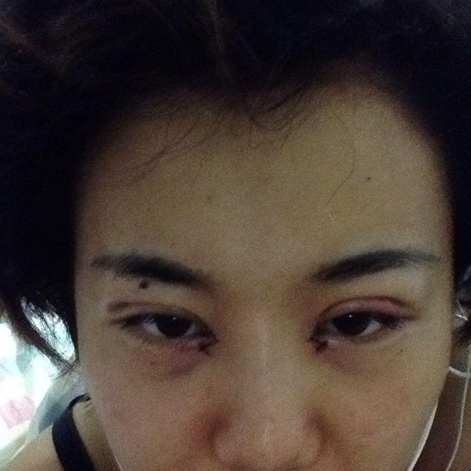 刚刚割完双眼皮之后的样子_两个双眼皮刚割完第二天 现在不一致。正常吗_百度知道