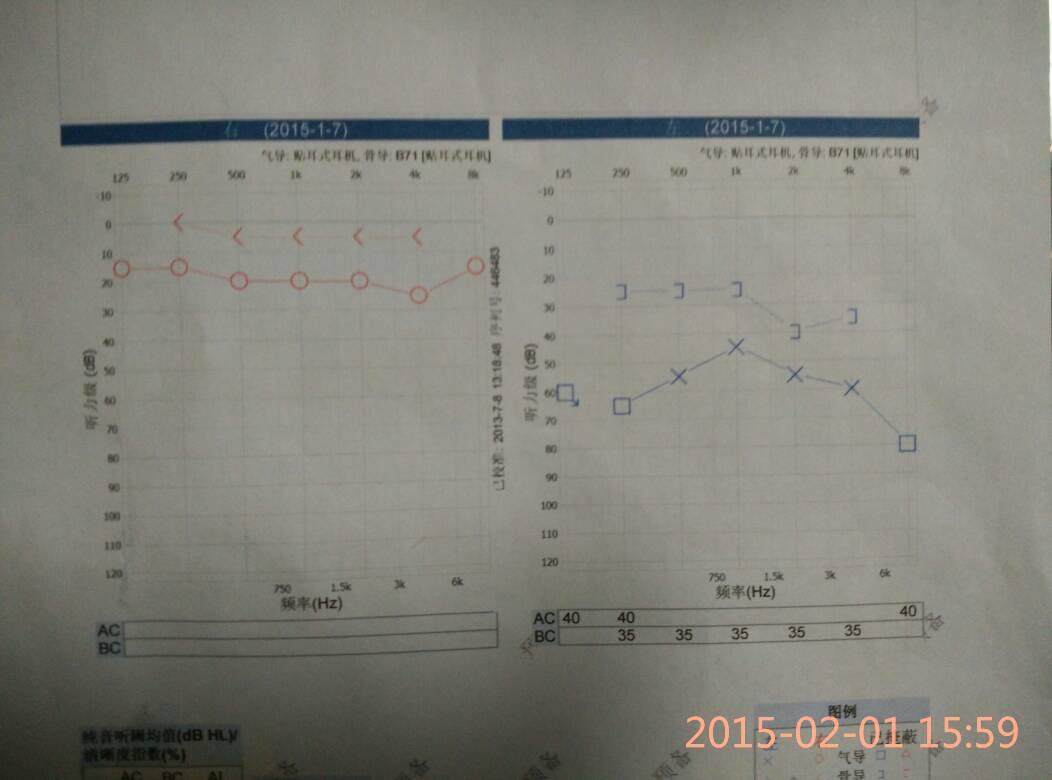 听力下降的自我检测 听力测试正常值表图片
