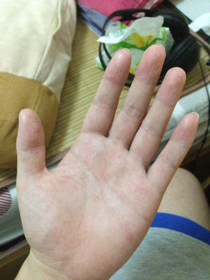 手掌有红点有点痒还脱皮图片