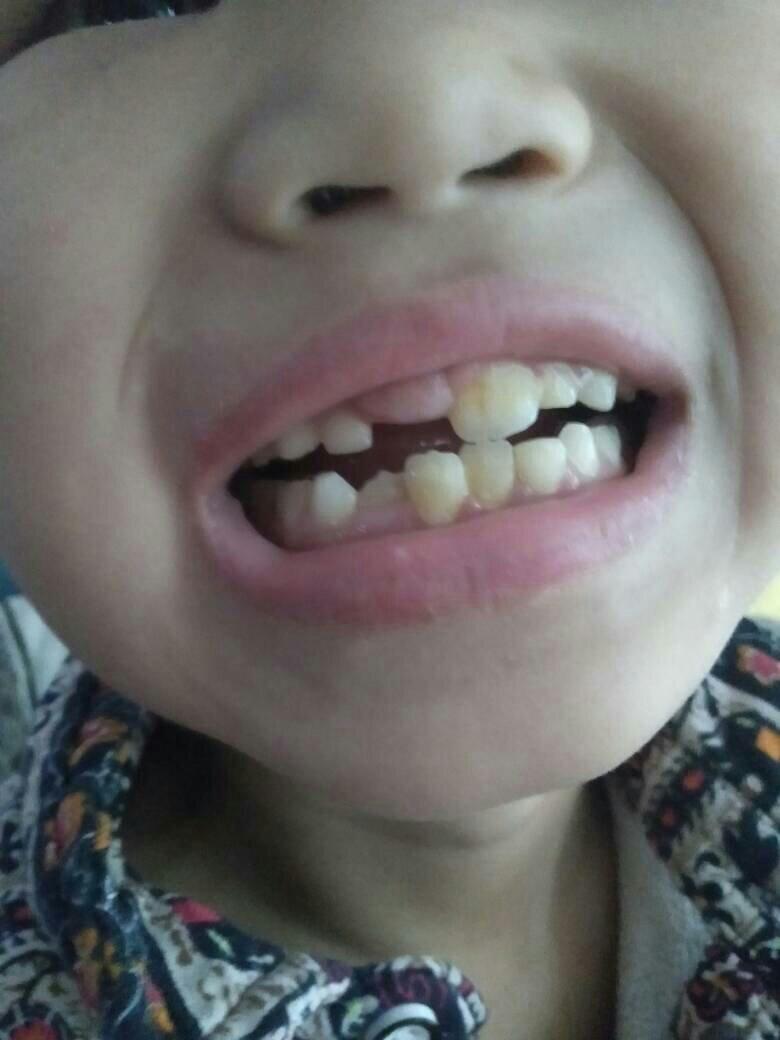 梦见牙掉了一半没出血 牙掉了一半是什么预兆