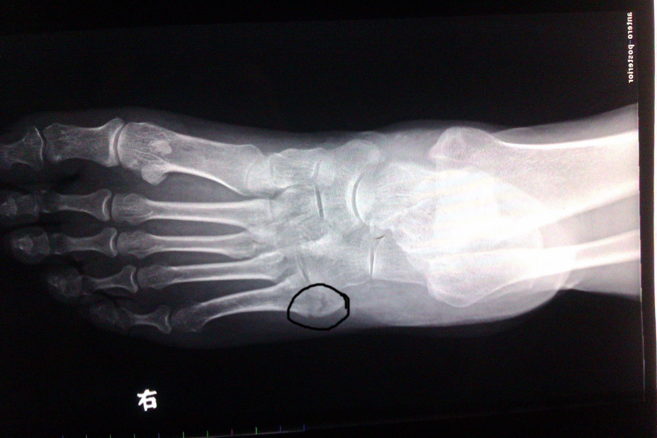 要命的数学_帮我看下脚哪里骨折了。有图给确实回答的果断给分,在线等 ...