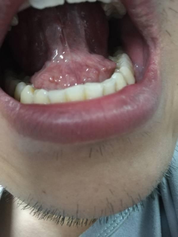 舌头下面感觉好多小肉疙瘩是什么病