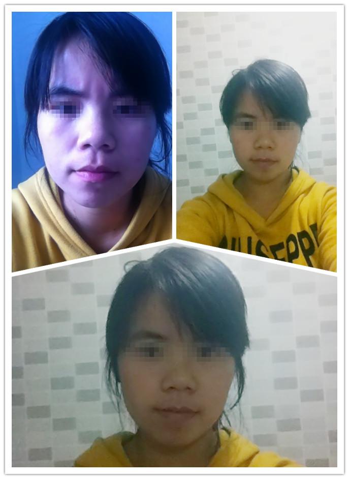 戚薇什么脸型_请问这是什么脸型?适合剪什么样子的发型?像戚薇、周雨晨 ...
