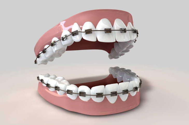 自锁牙套和普通牙套_金属牙套都是什么材质_百度知道