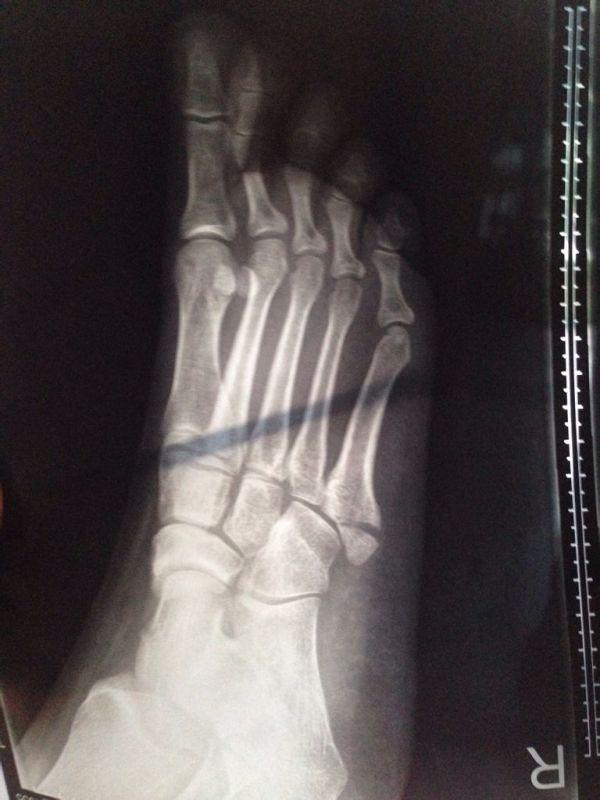 第五跖骨基底部骨折手术后一个月零七天可以取出里面的两根克氏针吗