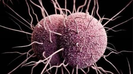 """淋病细菌变得越来越""""聪明"""",连抗生素也对付不了它的头图"""