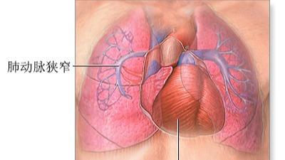 什么是肺动脉高压?特发性肺动脉高压基因检测有什么用?