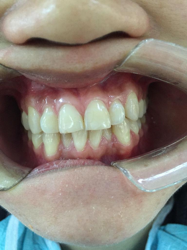 科做牙齿隐形矫正,选择隐适美还是上海正雅矫