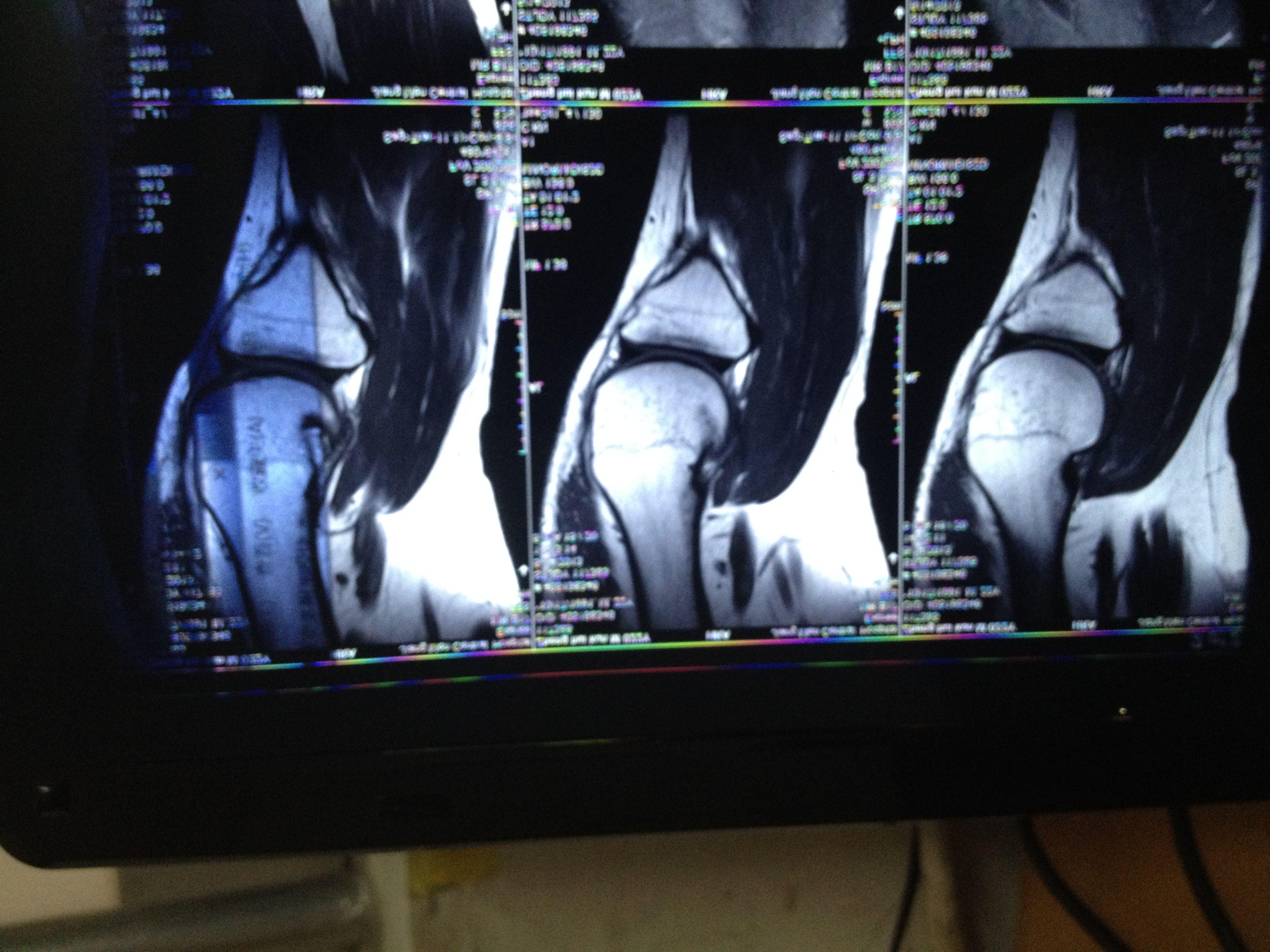 膝关节髌上囊积液_右膝外侧半月板及前交叉韧带损伤,右膝关节囊内,斌上囊内 ...