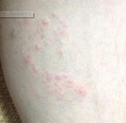 宝宝小疙瘩_请问我腿上长的是带状疱疹吗_百度知道