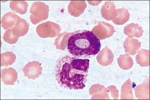 血常规白细胞_血常规检查中的中性粒细胞比例是什么意思_百度知道