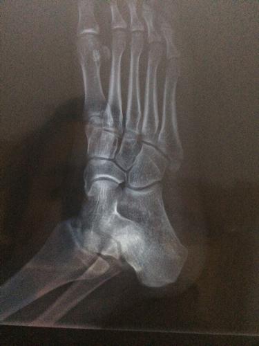 这样子的骨折严重吗 右脚第五跖骨基底部骨折3月27日晚上扭的,29号