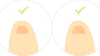 小脚趾的指甲分成两瓣的人,他们究?#25925;?#20040;来历?