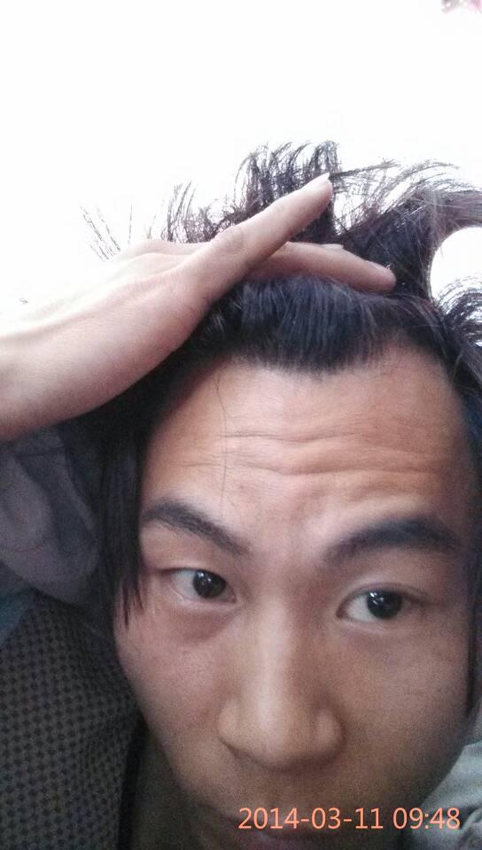 前额头发突出,两边少_我这样的头型!额头两边没有头发,中间又突出来一块有头发 ...