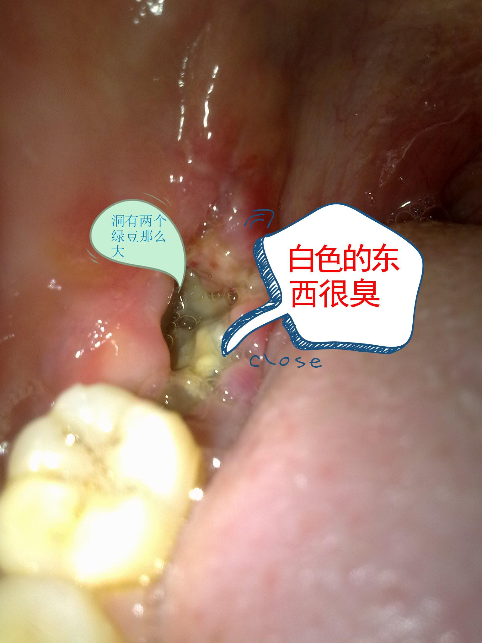 智齿图片大全_拔出智齿和一颗大牙后一直有白色的棉絮状东西在表面并且拆线 ...