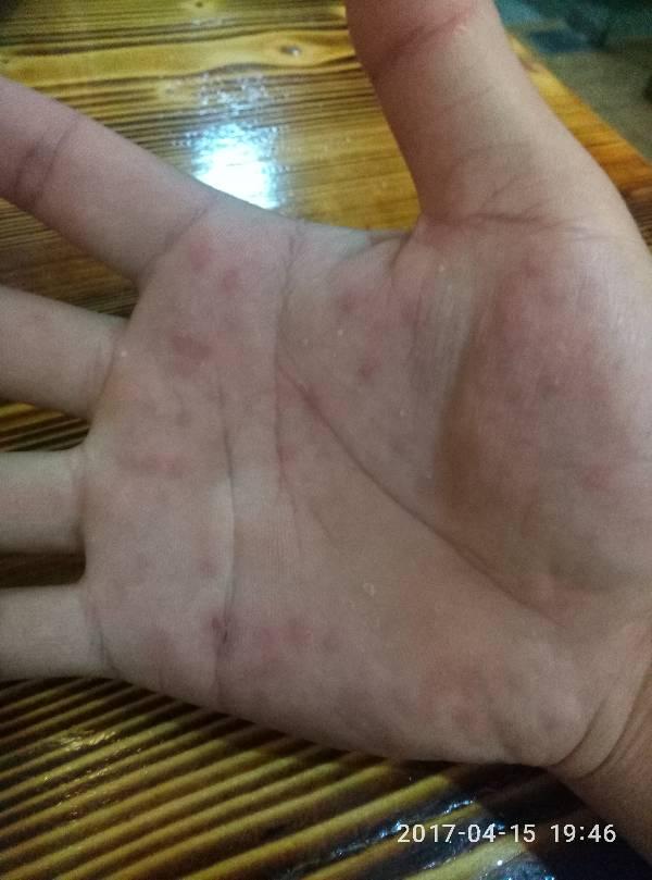 手心起红点点是怎么回事了,一个多月前有过一次,昨晚发现又出现了图片