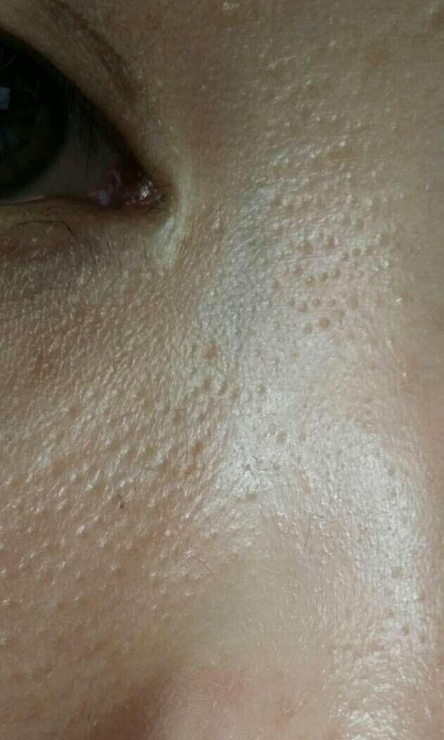 了小颗粒_鼻子俩边张了很多肉色麻麻点点的小颗粒不痛不痒是什么呢