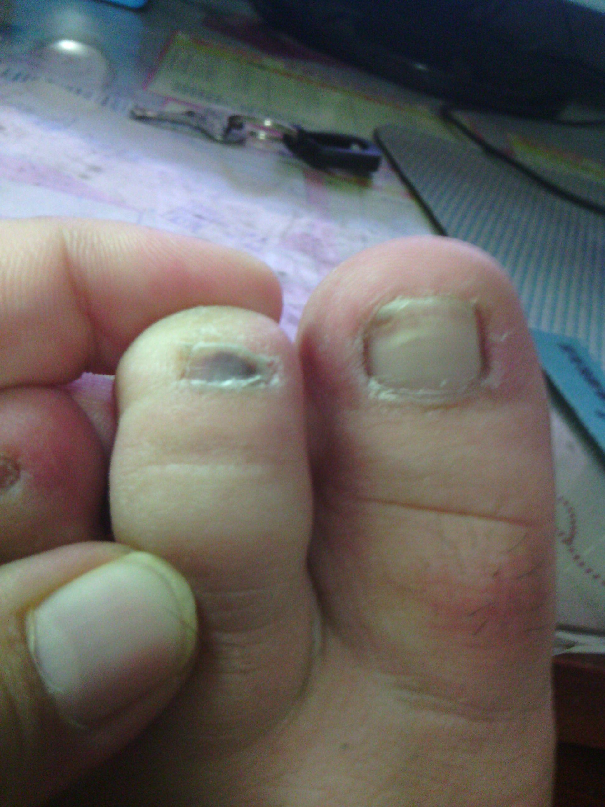 灰指甲用啥药好_我这是不是灰指甲的症状,应该怎么治,用什么药比较好,什么 ...