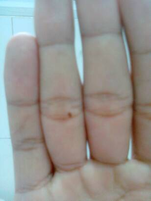 男孩左手无名指有痣_寻找左手无名指有痣的女孩_百度知道