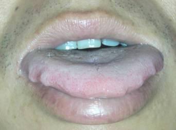 舌头长痘痘,在舌尖和二旁,很有规律,睡觉起来很明显,活动活动