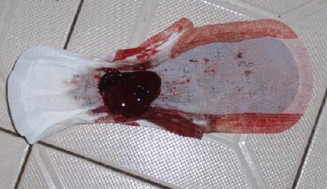 月经血块是怎么回事_求助月经出现超大血块,吓死人了!有图嫌恶心的就不要看了 ...