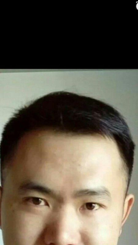 前额头发突出,两边少_额头两边头发好少啊,该剪什么发型呢?_百度知道